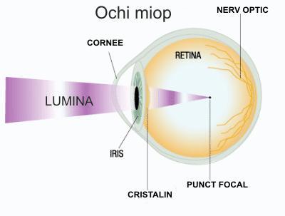 tratamentul hipermetropiei și miopiei miopia scolara