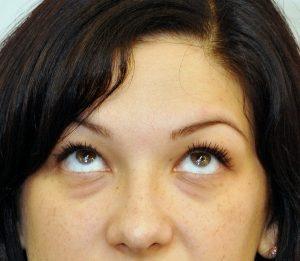 gimnastică pentru ochii unui oftalmolog american programați cum să restaurați vederea prin exerciții