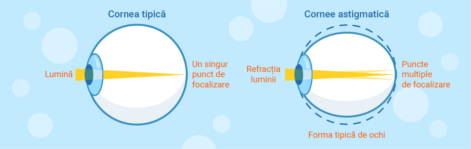 astigmatism și acuitate vizuală hipermetropie picături