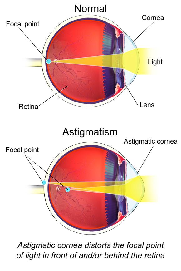 diagnostic vizual astigmatism mixt
