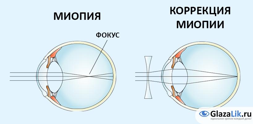 dizabilitatea miopiei