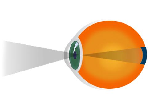 miopie cu deficiențe de vedere
