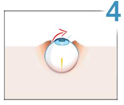 cum se tratează vederea minus 2 indicator vizual ideal