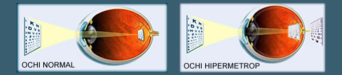 hipermetropie 12 dioptrii ceea ce vă înrăutățește vederea seara