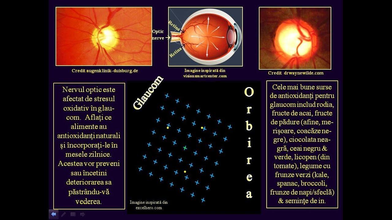 exerciții pentru restabilirea vederii în glaucom sfeclă roșie pentru vedere