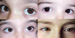 cum să obțineți 100 de viziuni înapoi prolactină și vedere crescute