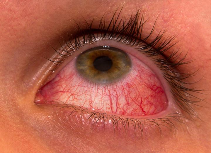 Conjunctivita - tipuri, simptome, cauze, diagnostic, tratament