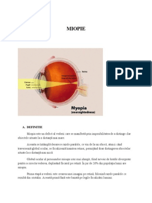 cum se tratează miopia de gradul I restaurarea video a vederii