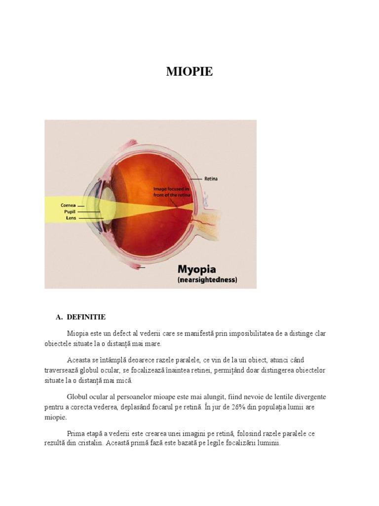 complicatie miopiei