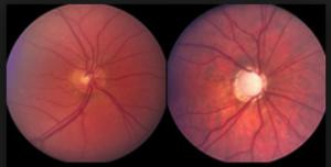 îmbunătățirea glaucomului vizual tabele de testare a viziunii cromatice