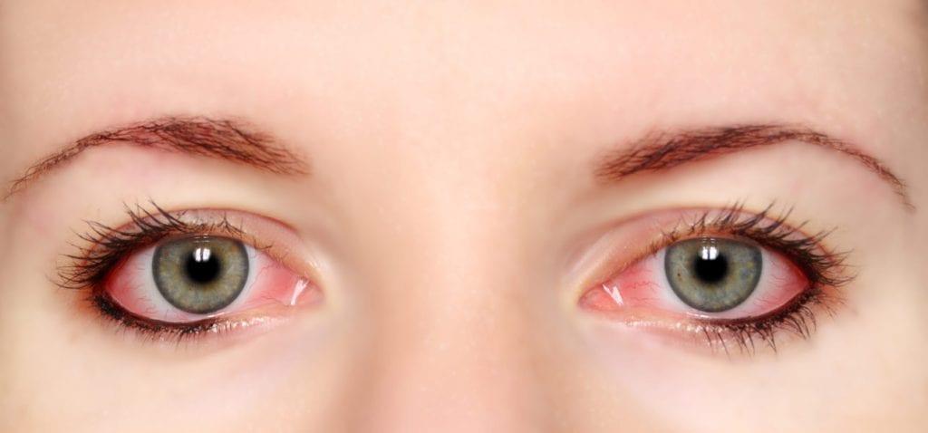 Pungile de sub ochi: cauze si tratament | Medlife