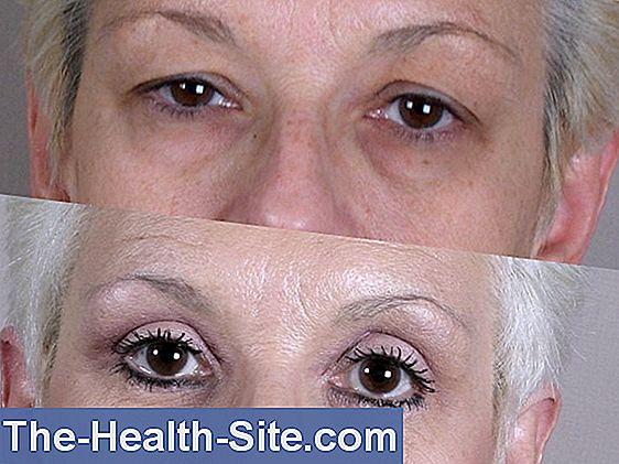 ptoza afectează vederea de ce doare ochii