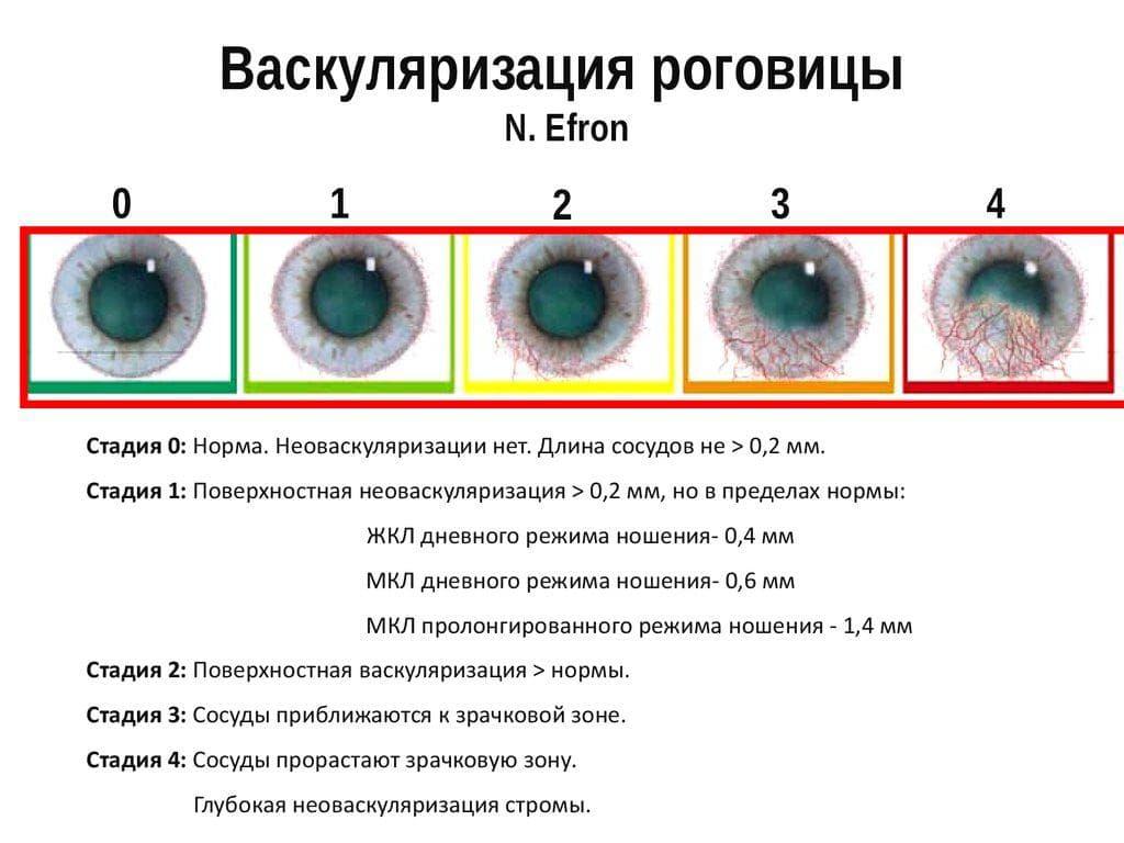 keratoconus viziune nouă