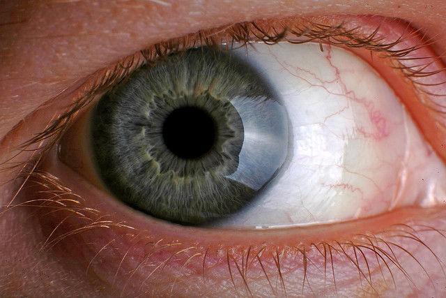 cum să-ți crești vederea