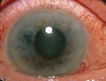 greață și pierderea vederii îmbunătăți viziunea evit