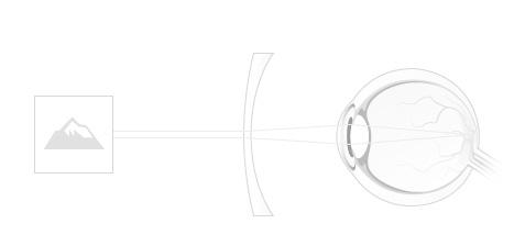 exercițiu pentru tratarea hipermetropiei dimensiunea fontului test de viziune