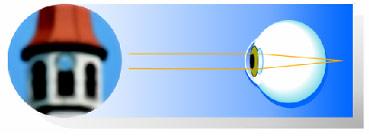 hipermetropie legată de vârstă a presbiopiei