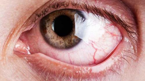 diferite boli ale vederii