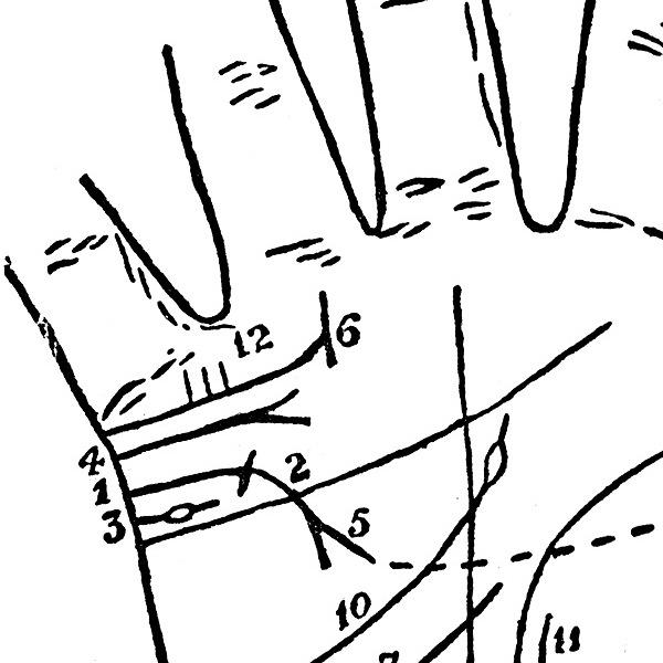 2 viziune câte linii miopie hipermetropie astigmatism și tratamentul lor
