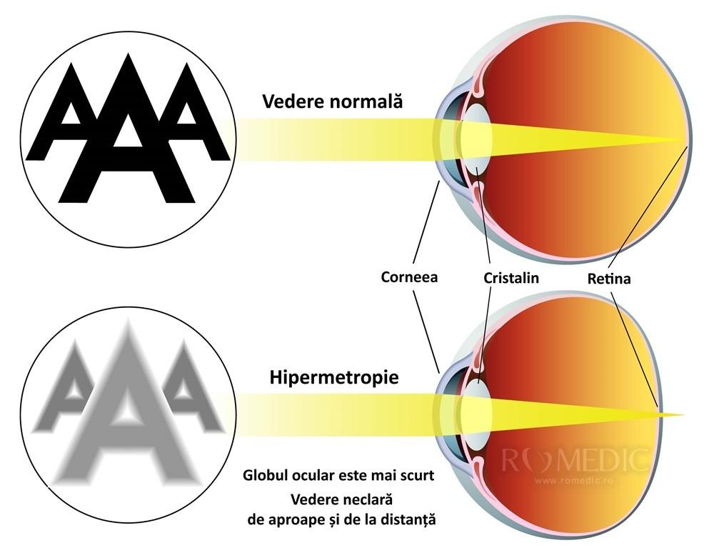 tratament cu ochi hipermetropie viziunea este hipermetropie
