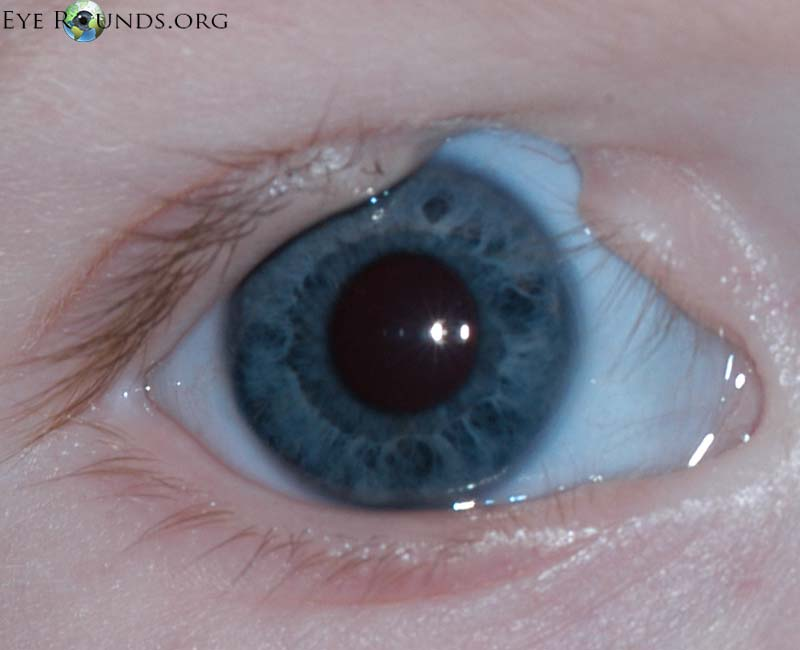 coloboma iris viziune vedere încețoșată cu epilepsie