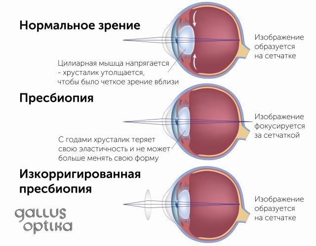viziune după 40 de ani hipermetropie