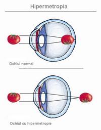 tratament pentru hipermetropie pietre de acuitate vizuală