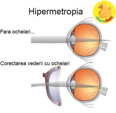 se pare ce este hipermetropie cauza pierderii vederii