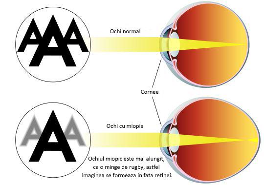 miopie 0 un ochi