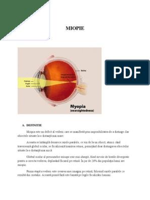 acuitate vizuală cu grad de miopie