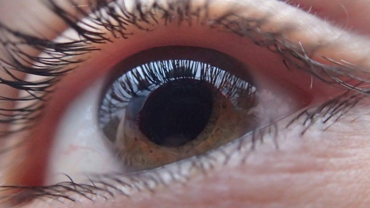 vedere dilatată a pupilei miopie și metode de tratament
