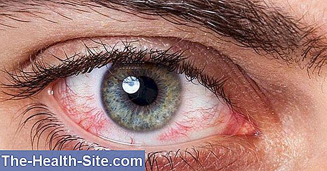 refacerea vederii după cheratita herpetică vederea mi s-a îmbunătățit repede