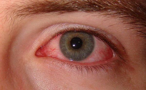 ce este să-ți protejezi vederea verificator de câmp vizual