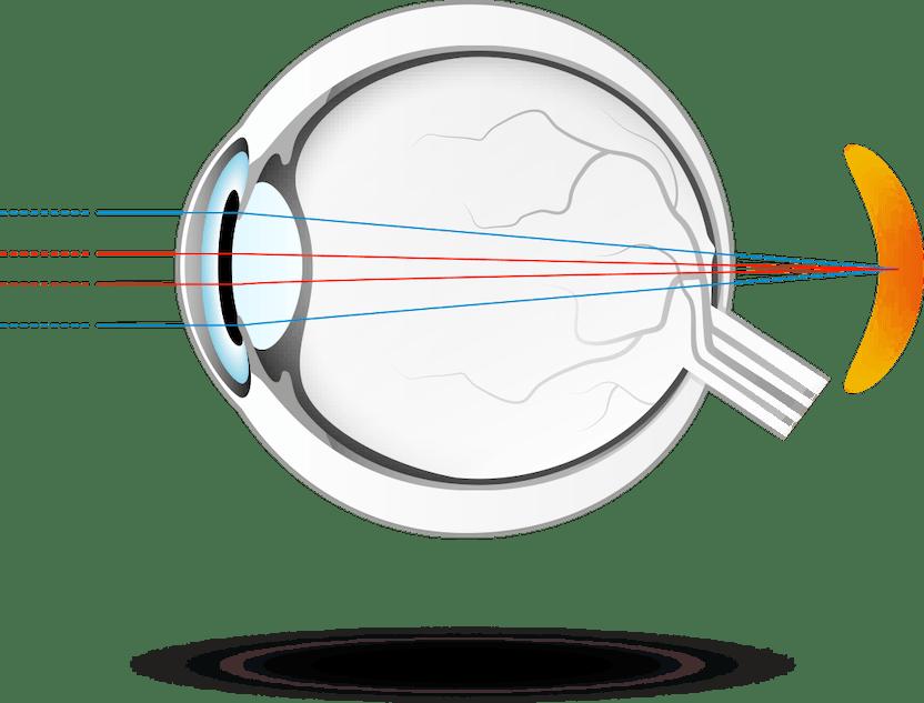 cum să îmbunătățim astigmatismul vederii