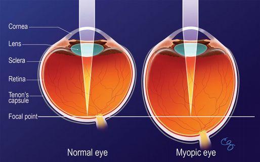 viziune minus 4 cum se vindecă puteți restabili vederea prin gimnastică