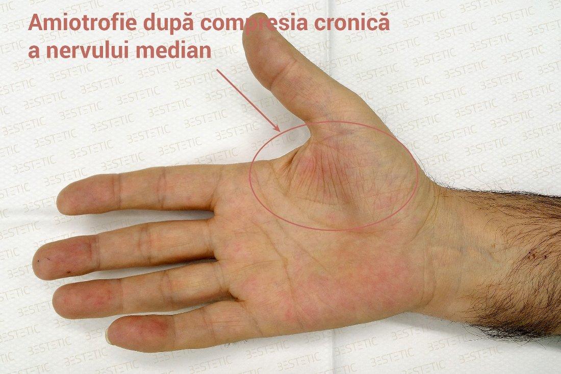 vârfurile degetelor devin amorțite