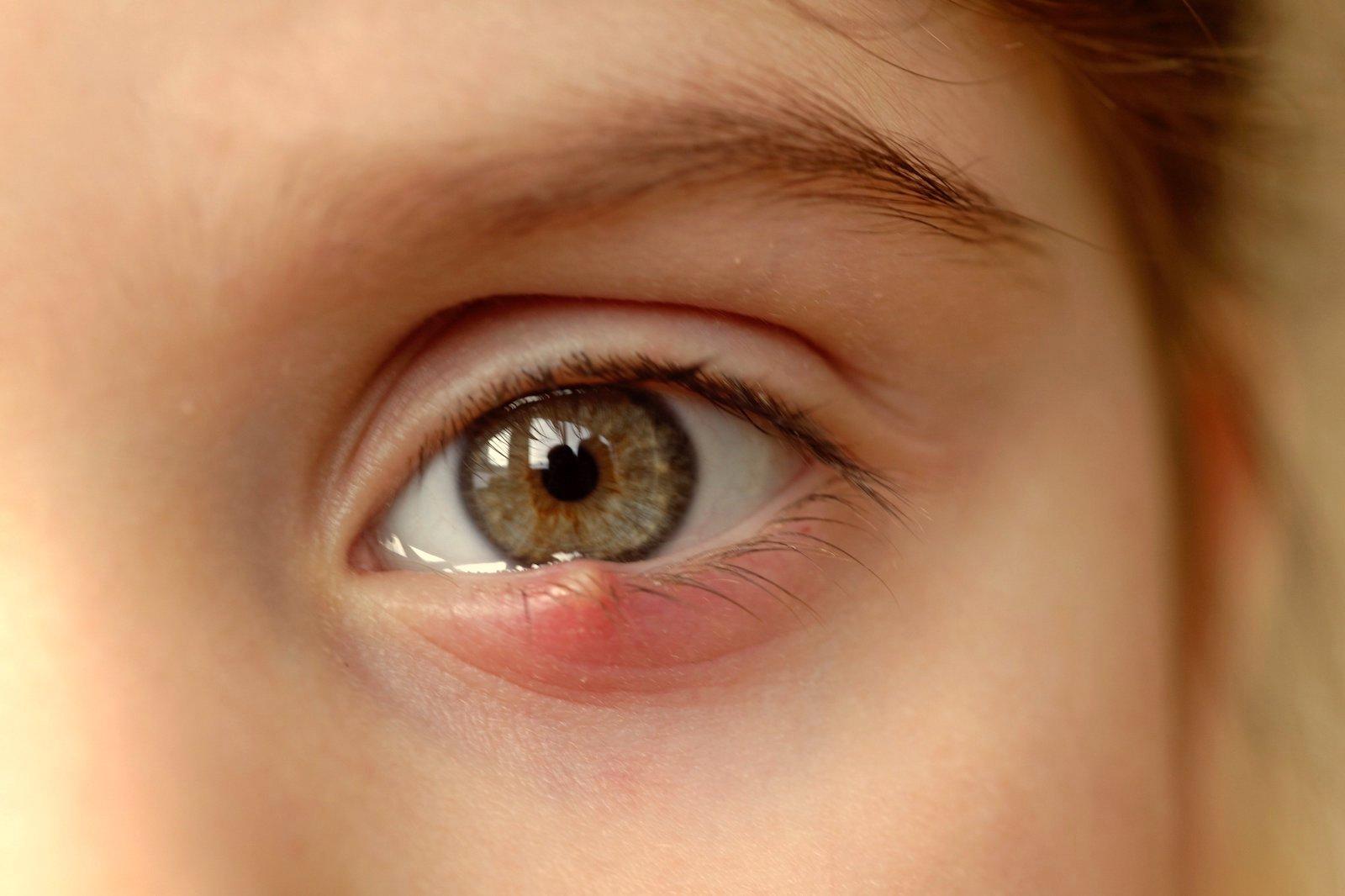 picături de miopie pentru tratament vârful degetelor deficiență vizuală