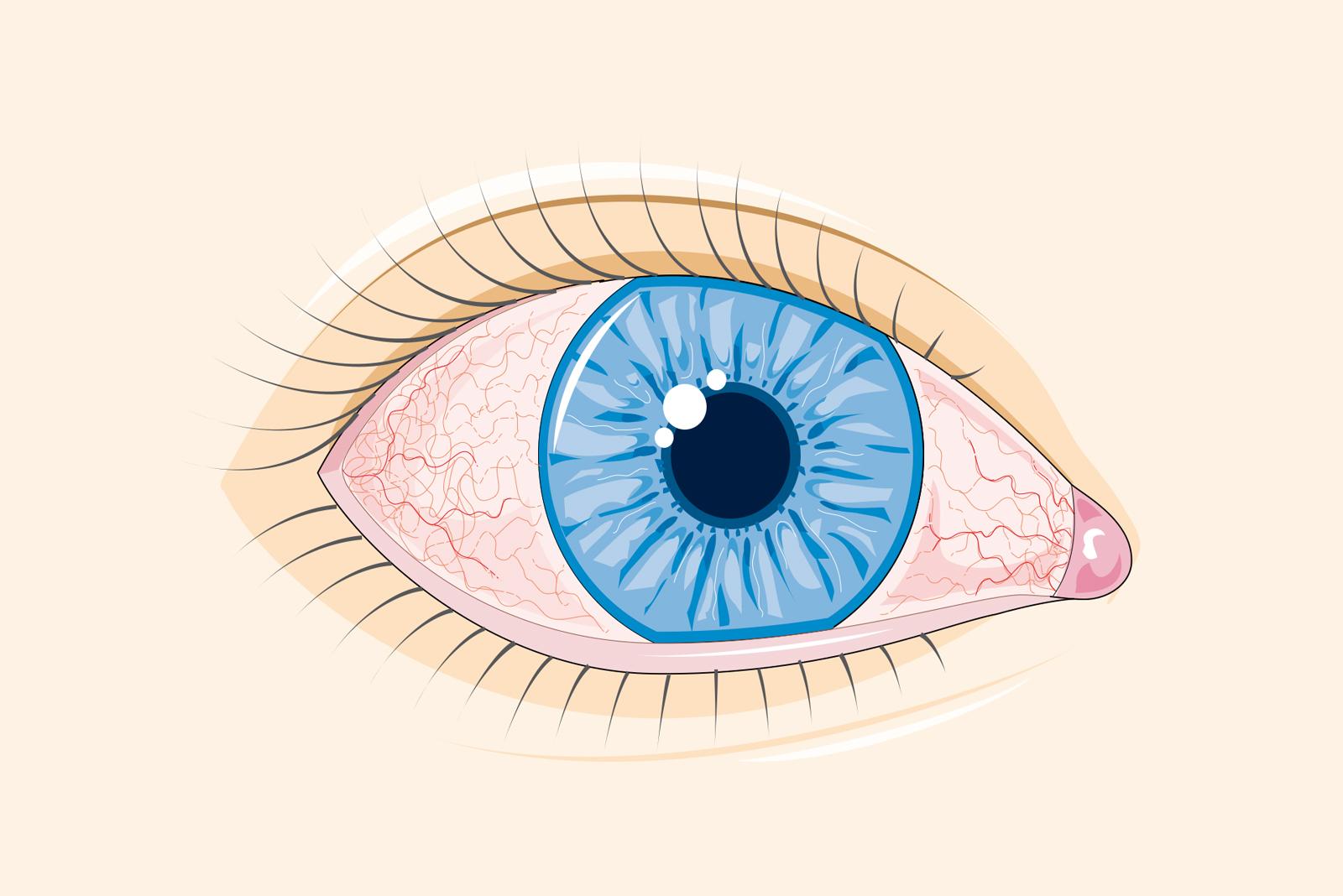 vedere încețoșată și durere de ochi