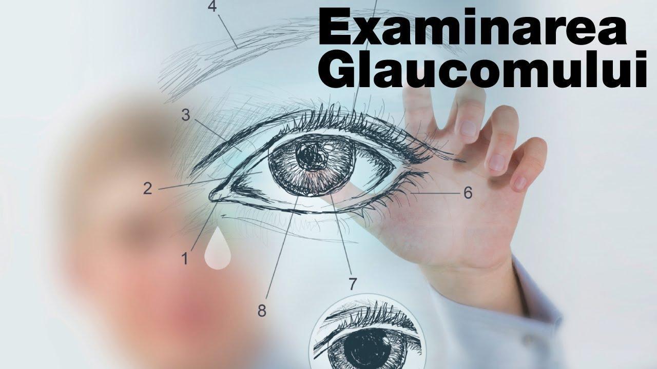 distorsionarea liniilor de vedere orizontale metoda de recuperare a vederii