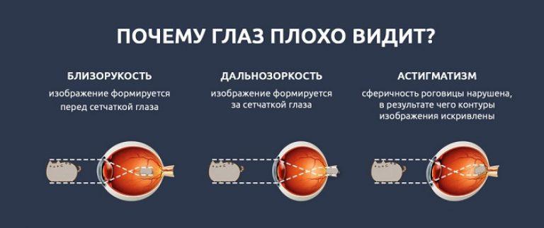 cum să restabiliți exercițiile de hipermetropie oculară cum să îmbunătățiți vederea ochilor