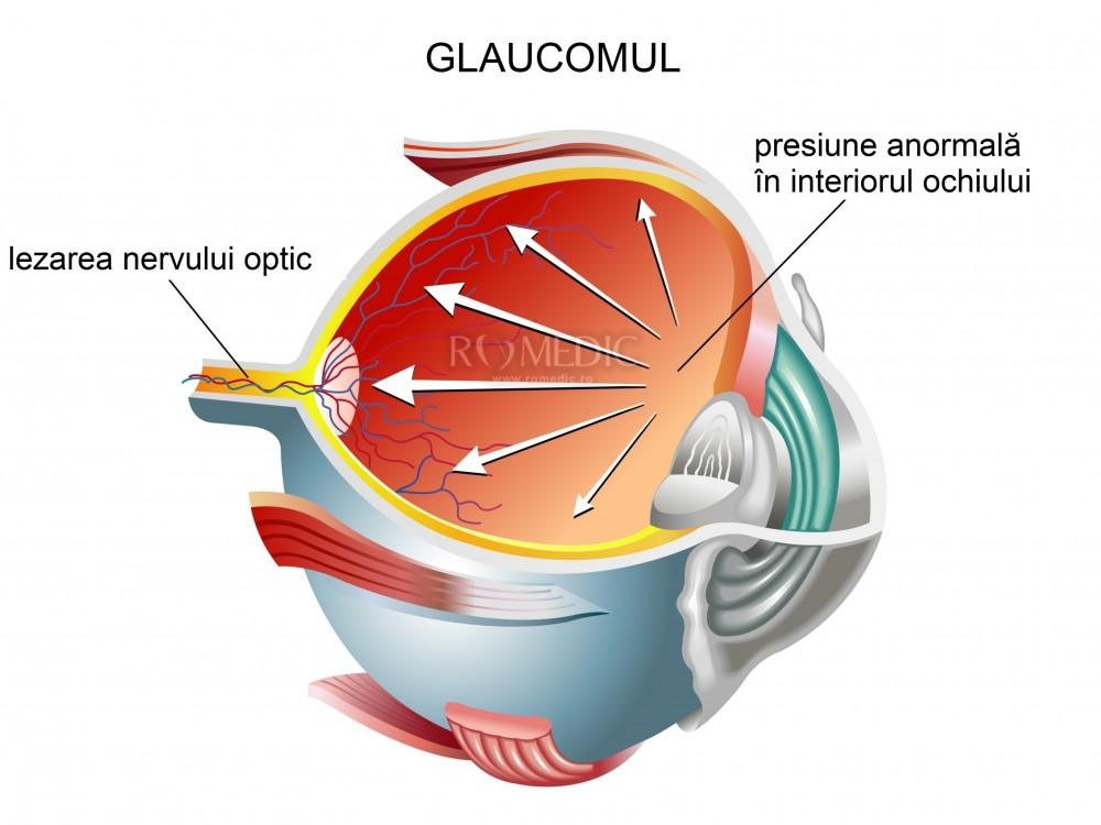 după chirurgia glaucomului cauza pierderii vederii viziune câte cadre