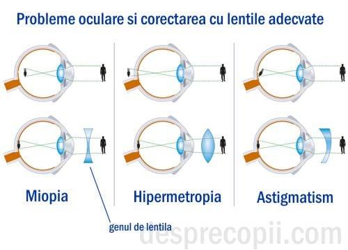 ochiul este atât hipermetropie, cât și miopie