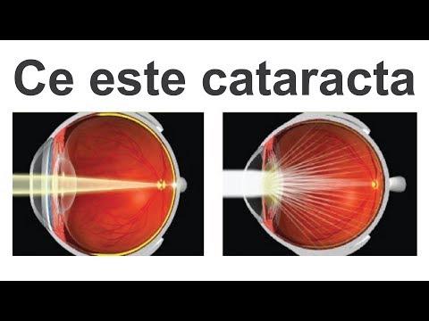 tratament pentru vedere