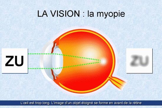 medic miopie tibet pentru vedere