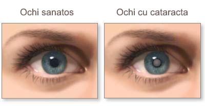 acuitatea vizuală cu blefarită