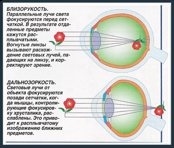 Ce înseamnă minus viziunea?