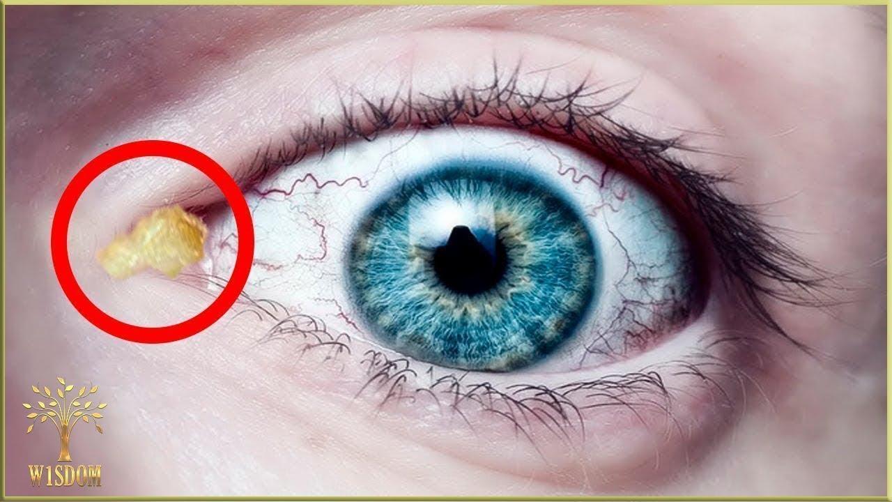 viziune plutitoare într-un singur ochi cum să restabiliți vederea în 2 zile