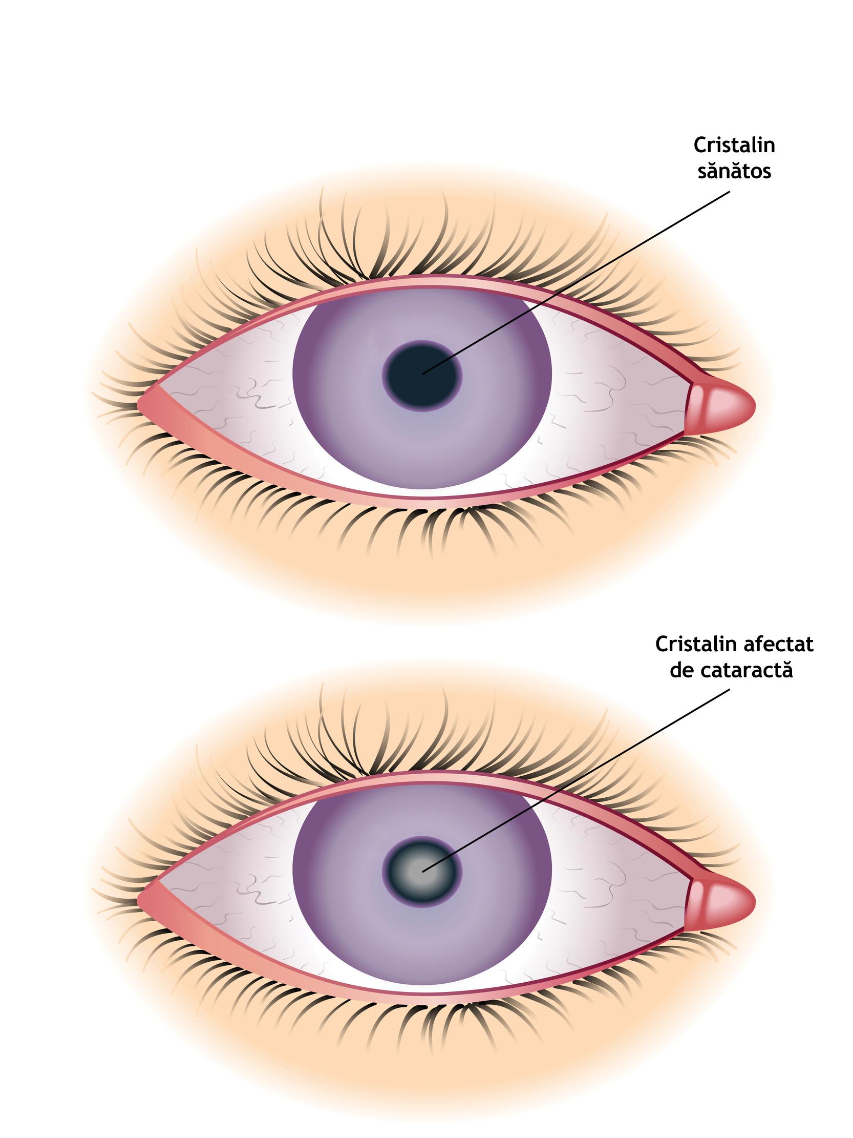 este posibil să vă îmbunătățiți vederea