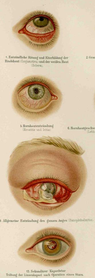 acuitatea vizuală este afectată