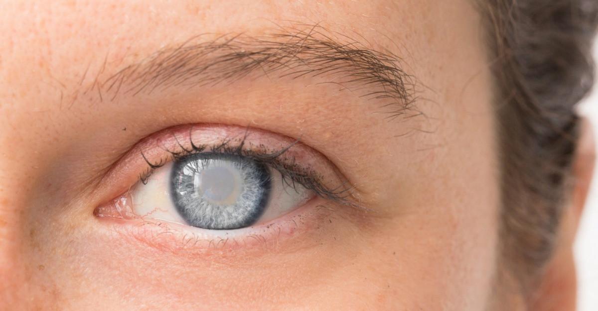 diferența dintre ochii bărbaților și femeilor
